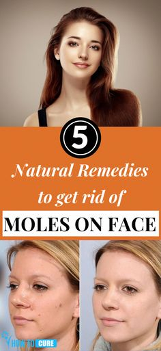 Several pigmented cell club together to form a dark spot on your skin which is t Moles On Face, Skin Moles, Best Beauty Tips, Beauty Care, Beauty Hacks, Skin Colored Mole, Small Bumps On Face, Day Makeup Looks