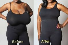 Breast reduction surgery Pros and Cons!