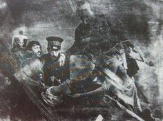 Photograph of an amputation on April 18, 1847 during the Mexican-American War of Sergeant Antonio Bustos by Belgian surgeon Pedro Vander Linden (who is holding the leg)