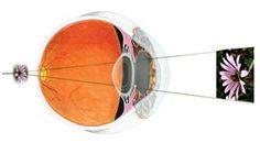 Atasi Mata Plus Secara Alami >> Mata plus atau sering disebut dengan rabun dekat merupakan kelainan mata yang banyak menyerang orang tua usia diatas 40 tahun. Orang yang menderita mata plus atau rabun dekat akan cenderung menjauhkan benda yang dilihatnya dari mata. Dengan cara menjauhkan benda tersebut orang itu akan mampu melihat objek benda tersebut dengan lebih baik.