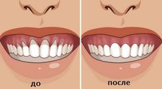 Top Oral Health Advice To Keep Your Teeth Healthy. The smile on your face is what people first notice about you, so caring for your teeth is very important. Unluckily, picking the best dental care tips migh Gum Health, Teeth Health, Oral Health, Dental Health, Public Health, Health Care, Health Remedies, Home Remedies, Natural Remedies