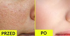 A lot of young and old women face the problem of open pores. Open pores are the large pores that usually appear on oily and combination skin. These pores Open Pores On Face, Orange Peel Skin, Get Rid Of Pores, Smaller Pores, Home Remedies For Skin, Natural Remedies, Shrink Pores, Clogged Pores, Skin Problems