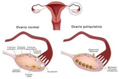 Chances Of Getting Pregnant, Pcos, Excercise, Health And Wellness, Improve Yourself, Ayurveda, Islam, Watch, Healthy