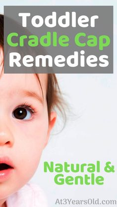 How to get rid of cradle cap in your toddler. I explain how I used a natural and gentle remedy to cure our toddler's cradle cap and how you can use the same method. It was so easy and quickly worked wonders!