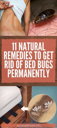11 Natural Remedies To Get Rid Of Bed Bugs Permanently