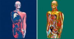 Xavier Lucchesi doesn't use a camera to capture his portraits; instead, he penetrates the human body with an advanced x-ray machine, revealing organs, arteries, and bones.