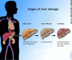 http://liverbasics.com/end-stage-liver-disease.html Facts and information regarding ESLD. What you should understand about ESLD in non-medical speak and simple to understand language.
