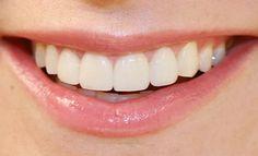 Diş Eti İltihabı Nedir? Nedenleri ve Tedavisi