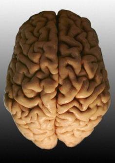 Brain AwarenessWeek