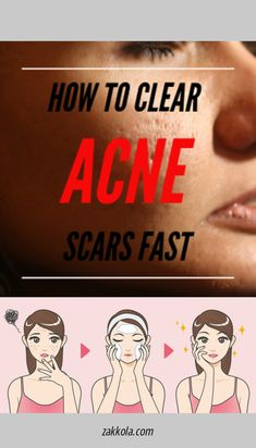 Go to the webpage to read more on acne.  Just click on the link for more info Acne Remedies, Acne Scars, Acne Treatment, Strength, Reading, Link, Acne Products, Word Reading, The Reader