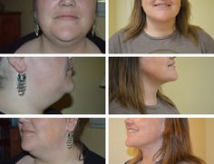 Liposuction Gallery - Columbia Plastic Surgery - Dr. Howard