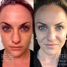 """""""Before I joined Rodan + Fields, I had the absolute WORST definition of combination skin. I'm talking some kinda nasty combination of cystic acne, occasional dryness/flaking, large pores, sundamage/discoloration and redness. The makeup I was plastering on my face wasn't helping any of it either. But at the time, I was only bothered by the pores and acne that even my designer foundation couldn't hide."""" Want more info? Message me: 636-248-4463 ReaganOglesby@gmail.com"""
