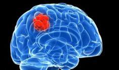 pengobatan tumor otak terbaik, alami, terstruktur, dan tanpa efek samping