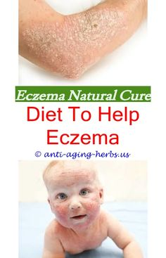 best eczema treatment best face lotion for eczema - infant eczema cheeks.is eczema itchy homemade eczema treatment for babies toddler has eczema eczema superinfection salicylic acid on eczema 55833.eczema diagnosis eczema itching remedies - bleach bath for eczema instructions.eczema symptoms eczema causes and natural cures eczema natural treatment uk sun eczema pictures what to use on eczema around eyes 36881