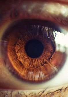 Pinners eye- when you've been staring at Pintrest so long your eyes start blurring.