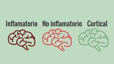 Identifican tres subtipos diferenciados de la enfermedad de Alzheimer: inflamatorio, no inflamatorio y cortical.