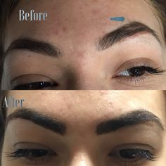 Eyebrows extensions to cover scars. Eyebrow Extensions, Natural Eyebrows, Face And Body, Skin Care, Cover, Eyebrows, Skin Treatments, Skincare, Blankets