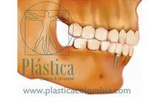 Implantes dentales - Plástica Colombia Oral Hygiene, Al Dente, Dental Extraction, Bone Grafting, Dental Offices, Dental Implants, Colombia