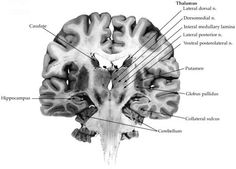 Neuroanatomical Correlates of Declarative Memory - Human Brain