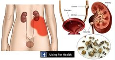 You Need a Kidney Cleanse. Here's How to Flush Out Toxins From Your Kidneys You Need a Kidney Cleanse. Here's How to Flush Out Toxins From Your Kidneys Kidney Detox Cleanse, Herbal Cleanse, Cleanse Your Liver, Kidney Infection, Urinary Tract Infection, Kidney Disease, Fruit And Vegetable Diet, Jus Detox, Body Detox