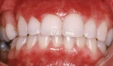 Inflammation of the gums is known as gingivitis. Bleeding from the gums is usually a sign of gum inflammation. Healthy gums are pale and firm, but diseased gums may become purplish red, swollen, and bleed when brushing teeth.