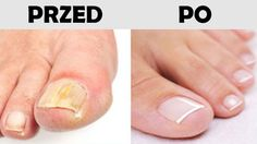 REMEDIES FOR TOENAIL FUNGUS Toenail fungus is a common fungal infection that grows in moist, warm and dark environments that affects mostly on toenails and fingernails. It appears as yellow or white spots on one or more nails that Toenail Fungus Remedies, Toenail Fungus Treatment, Toe Fungus Cure, Fungus On Toenails, Nailed It, Natural Treatments, Health Tips, Nail Art, Doterra Essential Oils