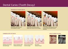 Tooth Decay Facts