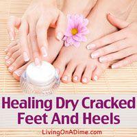 Healing Dry Feet And Cracked Heels #Hair-Beauty
