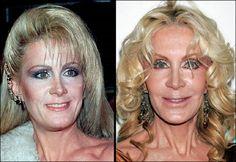 wrong Plastics surgery