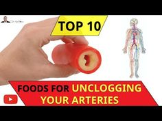 😍 ○ Top 10 Foods That Unclog Your Arteries Naturally - by Dr Sam Robbins Clean Arteries, Clogged Arteries, Arteries And Veins, Natural Cleanse, Natural Healing, Reduce Cholesterol, Cholesterol Levels, Artery Cleanse, Pure Cranberry Juice
