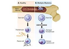 A beginners guide to Multiple Myeloma- anything you want to know about this horrible cancer. Very educational