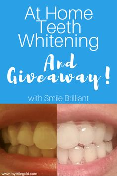 At Home Teeth Whitening: Does it Work? - My Little Gold Veneers Teeth, Tips To Be Happy, Beauty Tips For Face, Does It Work, Beauty Hacks Video, Healthy People 2020, Kids Nutrition, Beautiful Smile, Teeth Whitening