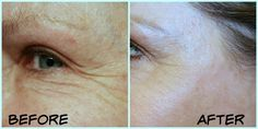 @TRIA Eye Wrinkle Correcting Laser + Promo Code! Prime Beauty Blog #PRIMPTriesTria @Primp