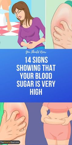 14 Signs Showing That Your Blood Sugar Is Very High - health and wellness Health And Fitness Articles, Health And Nutrition, Fitness Tips, Health And Wellness, Health Fitness, Key Health, Fitness Plan, Fitness Goals, Mr Olympia