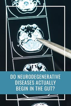 Do #Neurodegenerative Diseases Actually Begin in the #Gut ? Brain Health, Gut Health, Mental Health, Lewy Body, Degenerative Disease, Bodily Functions, Gut Microbiome, Irritable Bowel Syndrome, Emotional Stress