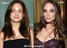 Alexa Ray Joel Plastic Surgery Before and After