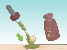 How to Get Rid of Skin Tags: 12 Steps (with Pictures) - wikiHow