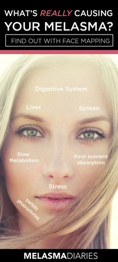 Use the ancient Chinese method of face mapping to determine what might be causing your hyperpigmenation and melasma.