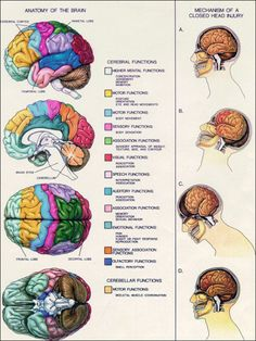 Anatomy of the Brain. Mechanism of a Closed Head Injury. Post Concussion Syndrome, Brain Science, Life Science, Computer Science, Science Education, Health Education, Physical Education, Brain Facts, Aphasia