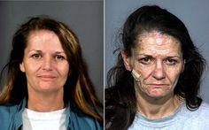 THIS IS WHAT HAPPENS WHEN YOU USE METH....