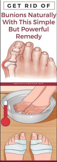 Get Rid of Bunions Naturally With This Simple But Powerful Remedy - Lo Que Necesita Saber Sobre La Salud Health Tips For Women, Health Advice, Health And Beauty, Health And Wellness, Health Care, Health Fitness, Healthy Tips, How To Stay Healthy, Healthy Women