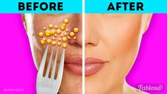 7 unexpected beauty hacks with lemon you'll thank us for | Beauty tips
