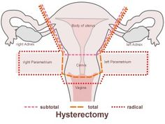 Top Side Effects Of Hysterectomy