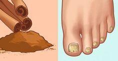 Niets is zo vervelend al schimmelnagels in de zomer. Je wilt dan graag je nieuwe open sandalen showen, maar schaamt je er eigenlijk voor. Wij hebben een tip die je zal verbazen. Misschien wist je al dat kaneel heel gezond voor je is en immuunversterkend werkt. Het is een natuurlijk middel en heeft veel voordelen. …