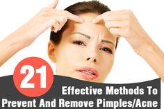 How To Avoid And Remove Pimples/Acne – 21 Effective Methods That Worked For Me