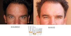 Rodan+Fields isn't just for women... this is a fellow consultant's husband with a dramatic result after using REVERSE!