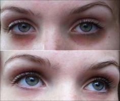 Muitas pessoas sofrem diariamente com as olheiras, talvez por dormir mal uma ou…