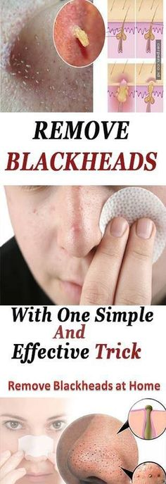 We all want to have clear skin, but those little parasites called blackheads come between our wishes. Blackheads are very small pimples with no skin on them, and because of that when they become exposed to air and moisture they oxidize and turn into brown-black color particles that are called as blackheads. I'm sure that …