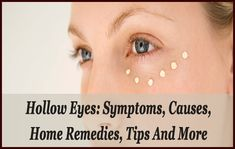 Hollow eyes make you look so older but do not worry because in this blog, you will get to know everything about hollow eyes, its causes, symptoms, home remedies and some effective tips to avoid having hollow eyes. Try home remedies mentioned here.