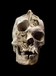 Adult human skull with severe craniofacial deformity. - What would this person's childhood and adulthood have been like? Actually, I hope this one is a hoax -- Polyostoticfibrousdysplasia?